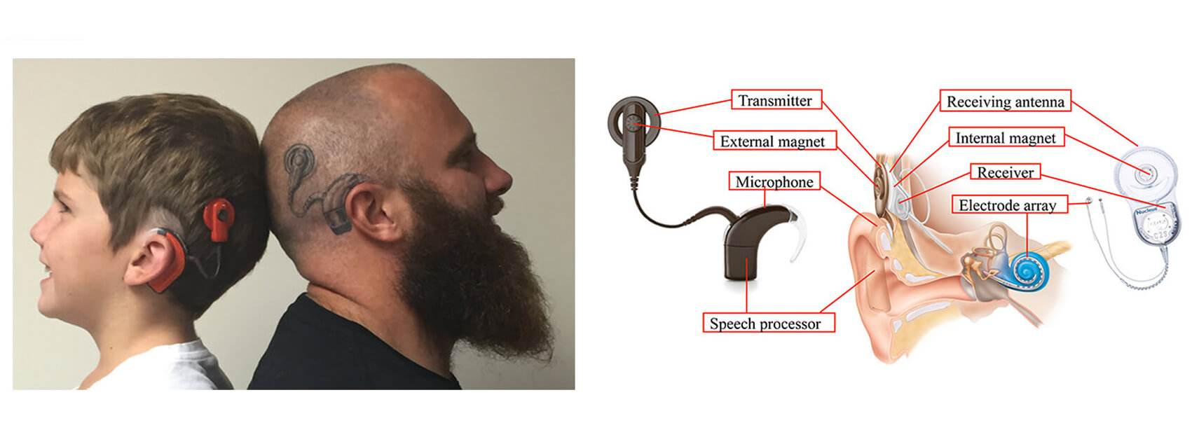 Cochlear Implant Magnets-2