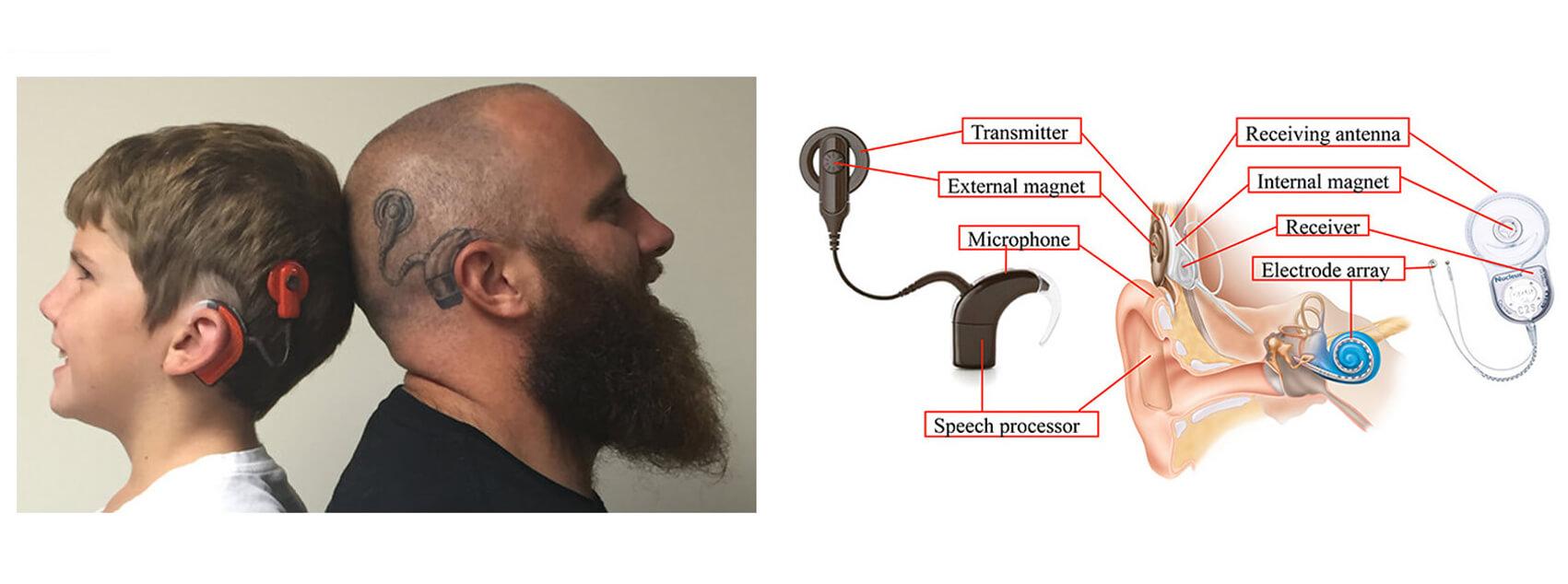 Cochlea-Implantat-Magnete-2